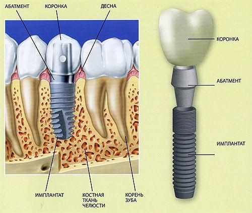 implantzubov